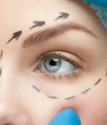 Eyelid Enhancement - ZEC